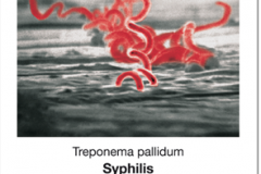 Seuchen_01_Syphilis